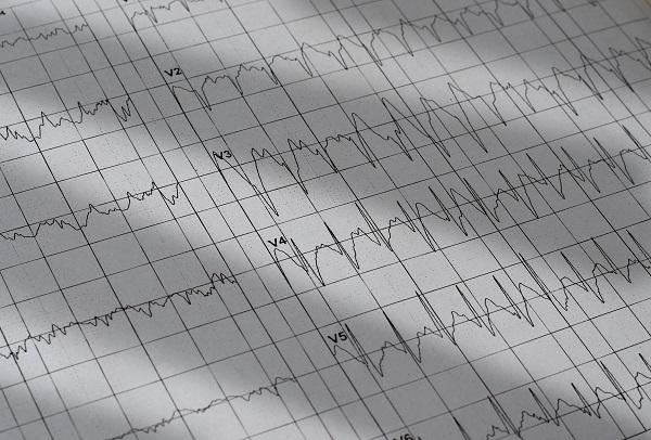 הביטוי של פעילות חשמלית מופרזת, עלולה להיות דרמטית מאוד - התקפי אפילפסיה בילדים